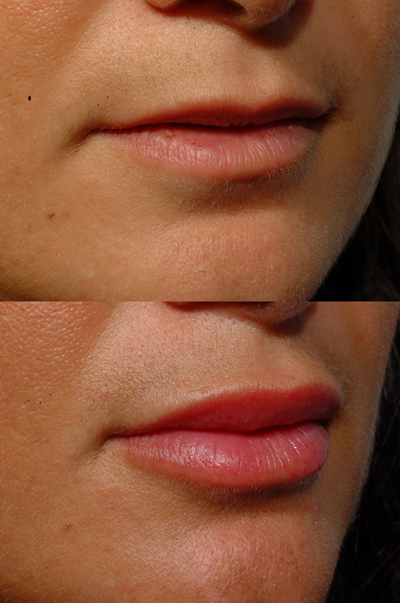 Both upper and lower lips
